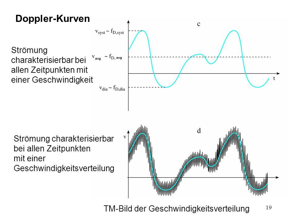 19 Doppler-Kurven TM-Bild der Geschwindigkeitsverteilung Strömung charakterisierbar bei allen Zeitpunkten mit einer Geschwindigkeit Strömung charakter