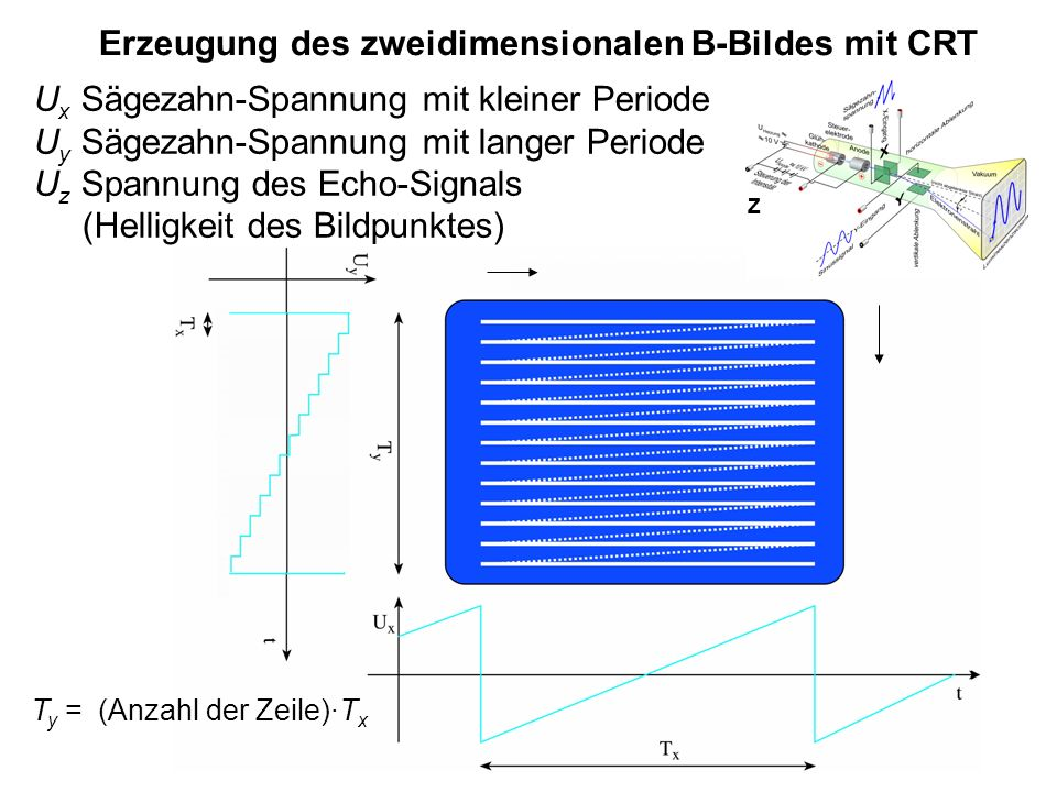 7 Erzeugung des zweidimensionalen B-Bildes mit CRT U x Sägezahn-Spannung mit kleiner Periode U y Sägezahn-Spannung mit langer Periode U z Spannung des