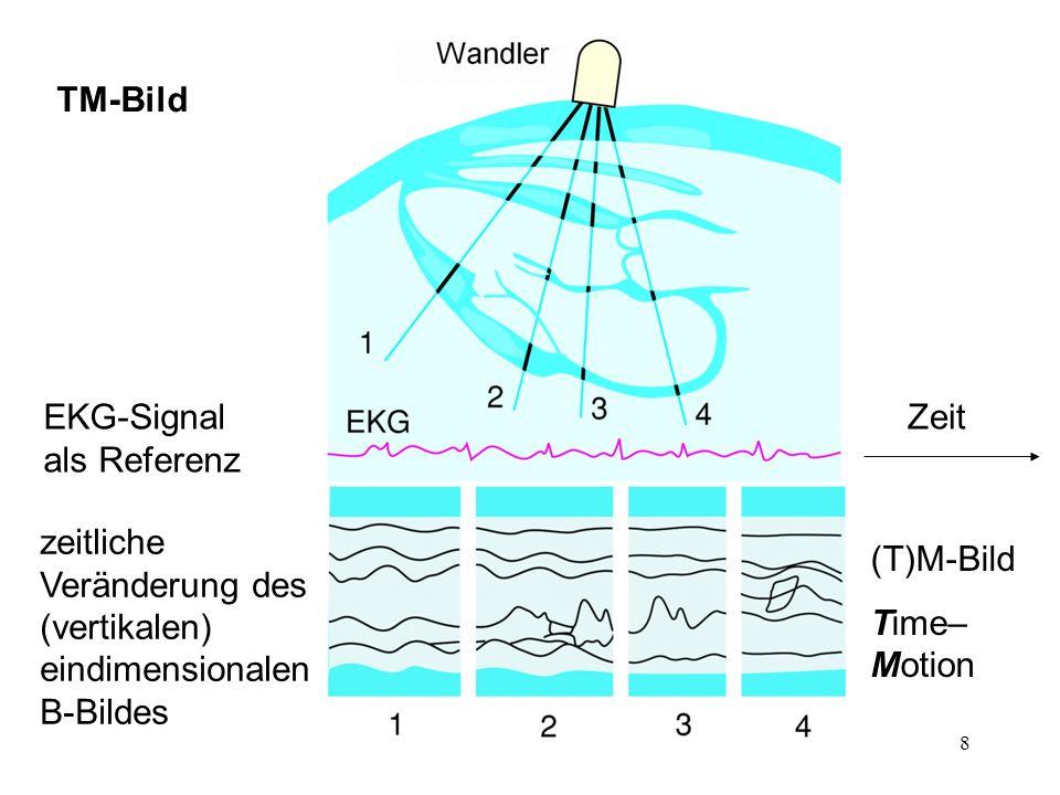 19 Doppler-Kurven TM-Bild der Geschwindigkeitsverteilung Strömung charakterisierbar bei allen Zeitpunkten mit einer Geschwindigkeit Strömung charakterisierbar bei allen Zeitpunkten mit einer Geschwindigkeitsverteilung