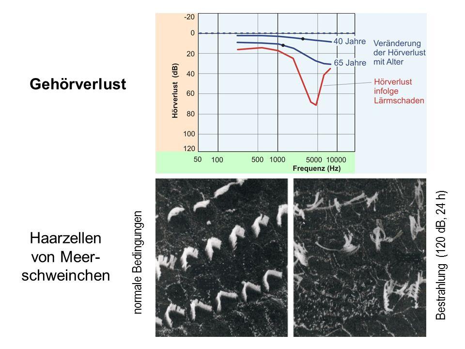 27 Gehörverlust normale Bedingungen Bestrahlung (120 dB, 24 h) Haarzellen von Meer- schweinchen