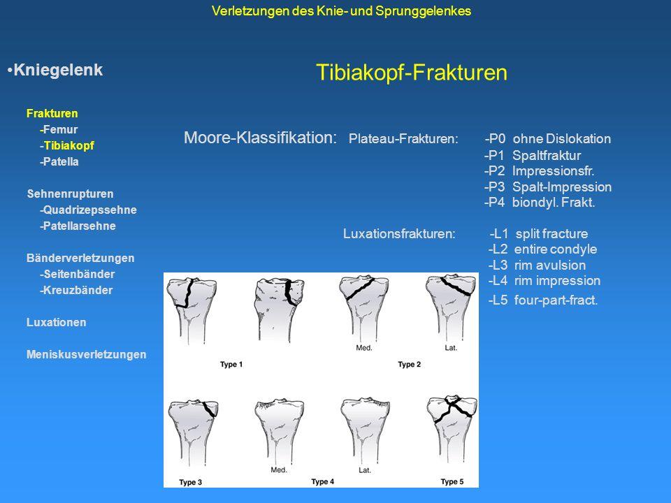 Tibiakopf-Frakturen Kniegelenk Frakturen -Femur -Tibiakopf -Patella Sehnenrupturen -Quadrizepssehne -Patellarsehne Bänderverletzungen -Seitenbänder -K