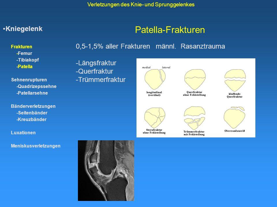 Patella-Frakturen Kniegelenk Frakturen -Femur -Tibiakopf -Patella Sehnenrupturen -Quadrizepssehne -Patellarsehne Bänderverletzungen -Seitenbänder -Kre
