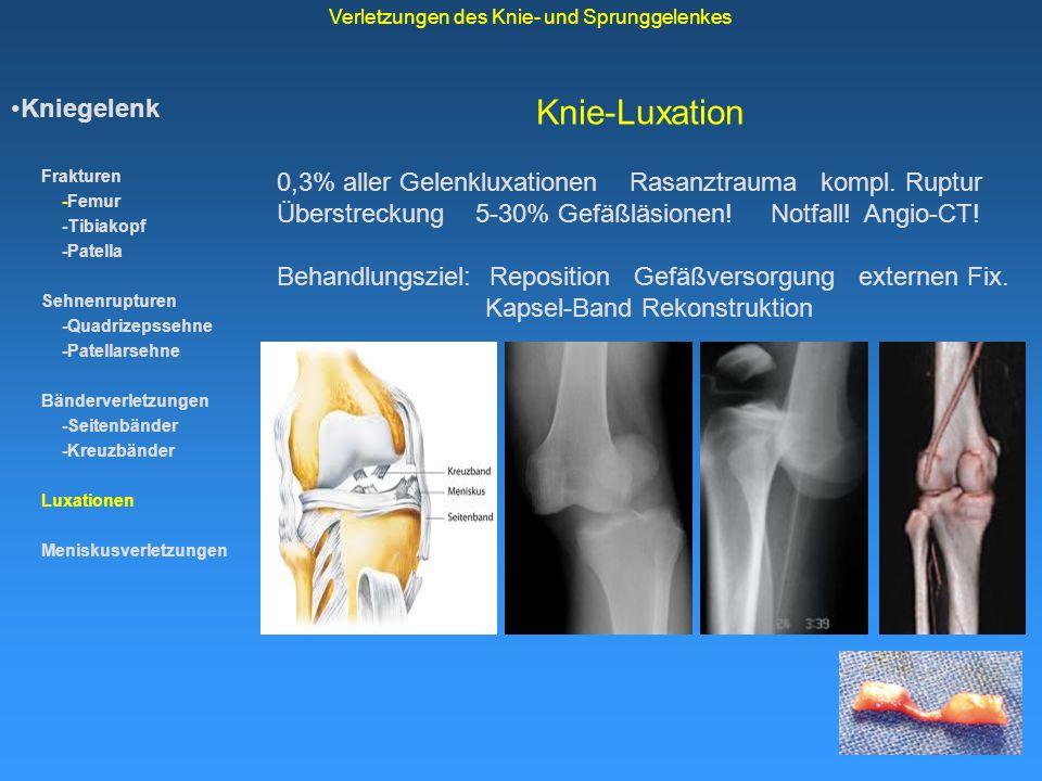 Knie-Luxation Kniegelenk Frakturen -Femur -Tibiakopf -Patella Sehnenrupturen -Quadrizepssehne -Patellarsehne Bänderverletzungen -Seitenbänder -Kreuzbä