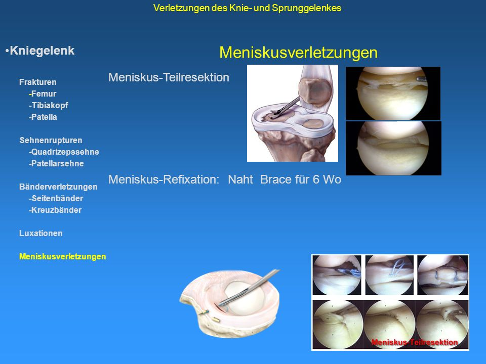 Meniskusverletzungen Kniegelenk Frakturen -Femur -Tibiakopf -Patella Sehnenrupturen -Quadrizepssehne -Patellarsehne Bänderverletzungen -Seitenbänder -