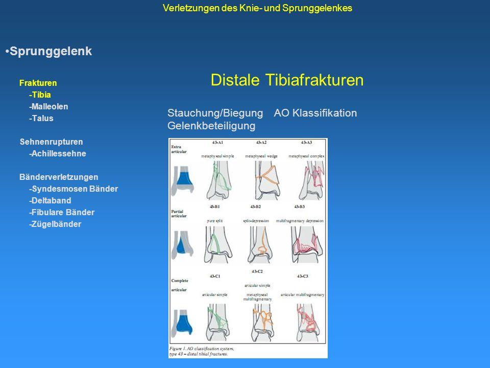 Distale Tibiafrakturen Sprunggelenk Frakturen -Tibia -Malleolen -Talus Sehnenrupturen -Achillessehne Bänderverletzungen -Syndesmosen Bänder -Deltaband