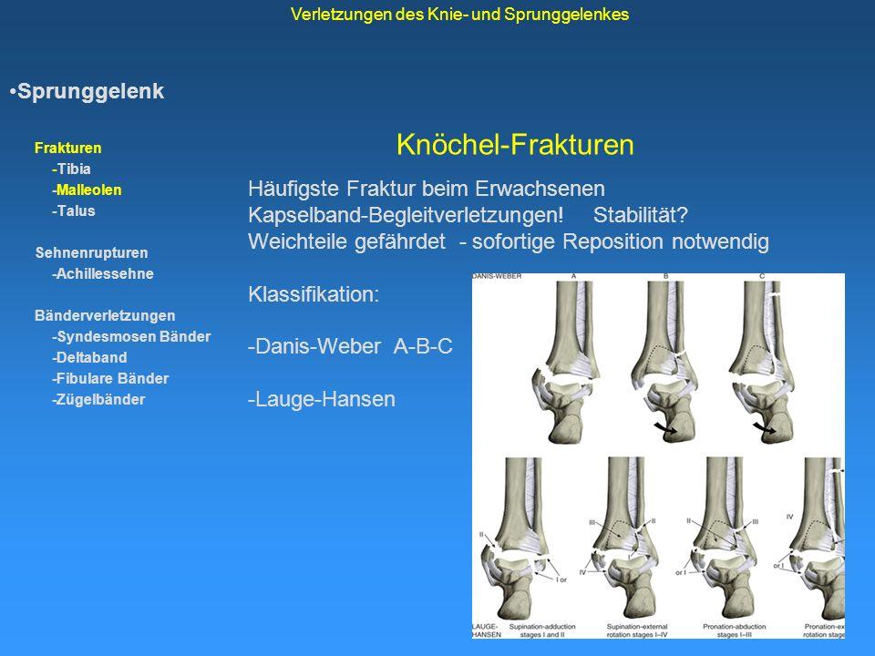 Knöchel-Frakturen Sprunggelenk Frakturen -Tibia -Malleolen -Talus Sehnenrupturen -Achillessehne Bänderverletzungen -Syndesmosen Bänder -Deltaband -Fib