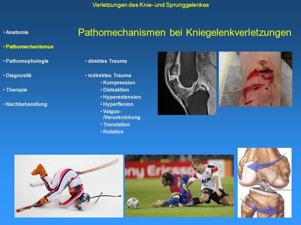 Anatomie Pathomechanismus Pathomophologie Diagnostik Therapie Nachbehandlung Verletzungen des Knie- und Sprunggelenkes Pathomechanismen bei Sprunggelenkverletzungen direktes Trauma indirektes Trauma -Kompression -Distraktion -Hyperextension -Hyperflexion -Pronation-/Supination -Translation -Rotation