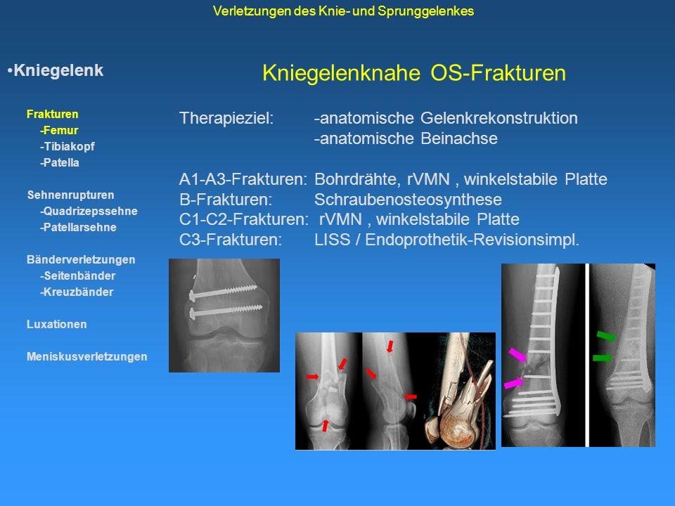 Kniegelenknahe OS-Frakturen Kniegelenk Frakturen -Femur -Tibiakopf -Patella Sehnenrupturen -Quadrizepssehne -Patellarsehne Bänderverletzungen -Seitenb