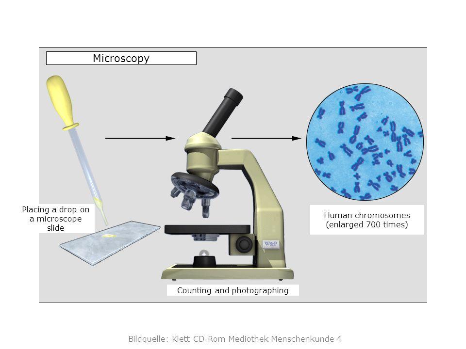 Bildquelle: Klett CD-Rom Mediothek Menschenkunde 4 Centromere region chromatids karyotype Karyotype
