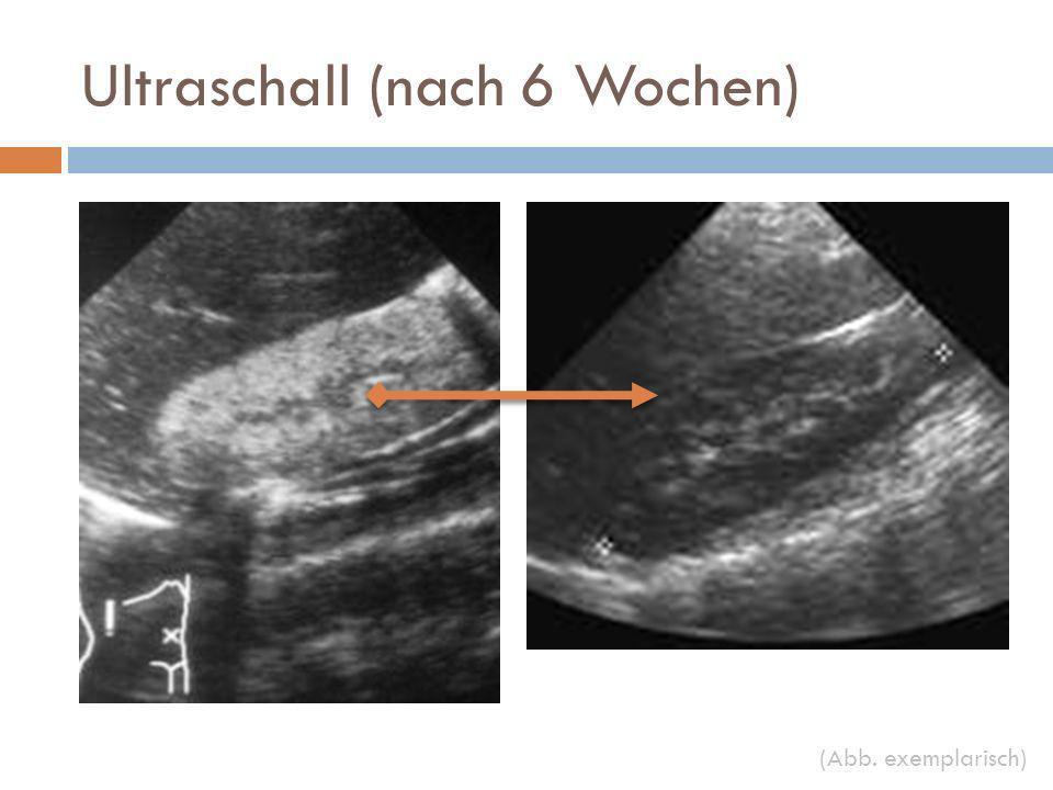 Ultraschall (nach 6 Wochen) (Abb. exemplarisch)