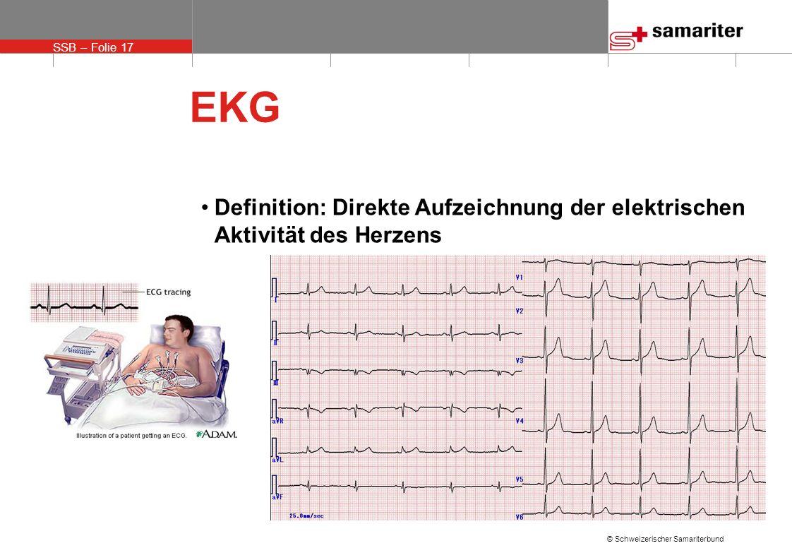 SSB – Folie 17 © Schweizerischer Samariterbund EKG Definition: Direkte Aufzeichnung der elektrischen Aktivität des Herzens