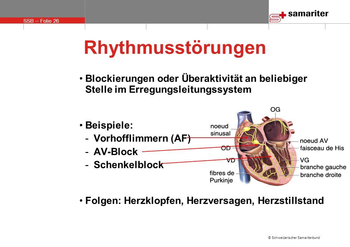 SSB – Folie 26 © Schweizerischer Samariterbund Rhythmusstörungen Blockierungen oder Überaktivität an beliebiger Stelle im Erregungsleitungssystem Beis