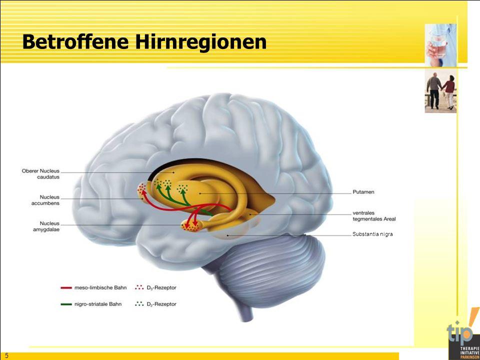 5 Betroffene Hirnregionen Substantia nigra