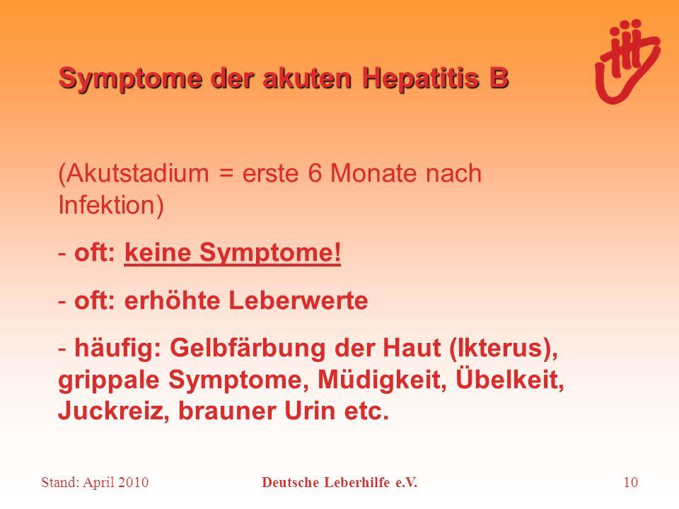 Stand: April 2010Deutsche Leberhilfe e.V.10 Symptome der akuten Hepatitis B (Akutstadium = erste 6 Monate nach Infektion) - oft: keine Symptome! - oft
