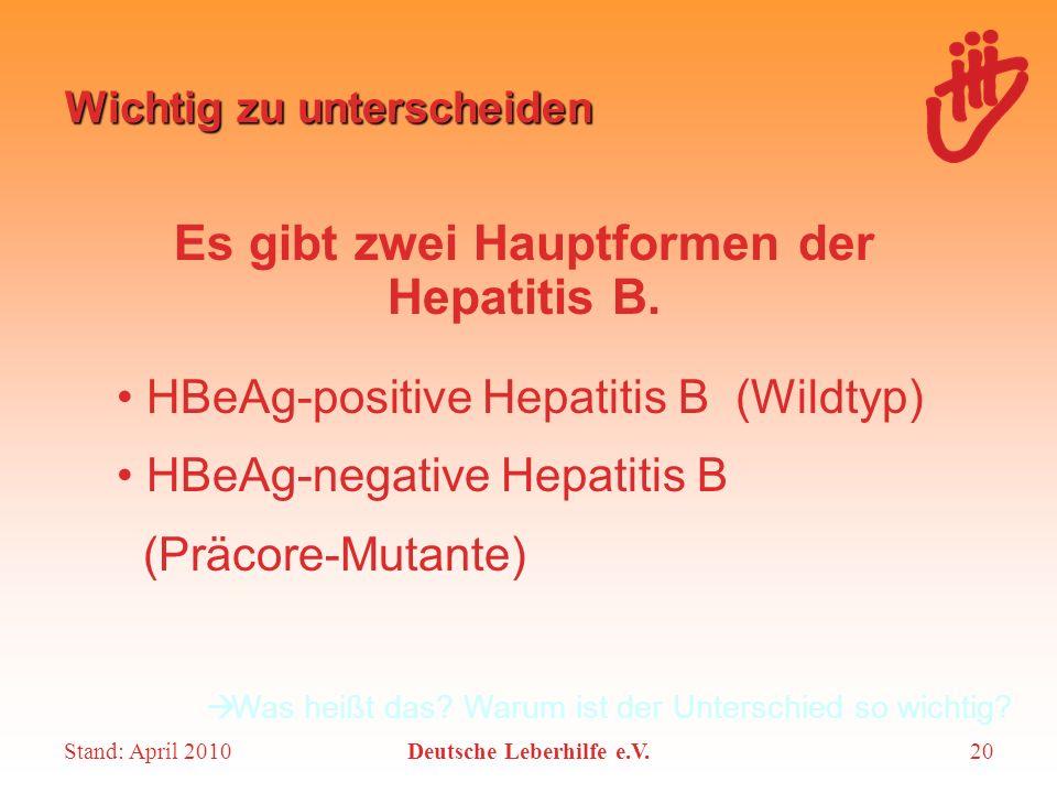 Stand: April 2010Deutsche Leberhilfe e.V.20 Wichtig zu unterscheiden Es gibt zwei Hauptformen der Hepatitis B. HBeAg-positive Hepatitis B (Wildtyp) HB