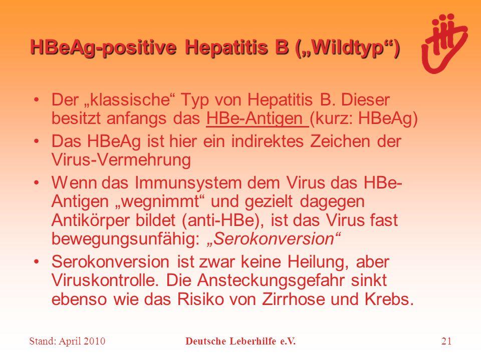 Stand: April 2010Deutsche Leberhilfe e.V.21 HBeAg-positive Hepatitis B (Wildtyp) Der klassische Typ von Hepatitis B. Dieser besitzt anfangs das HBe-An