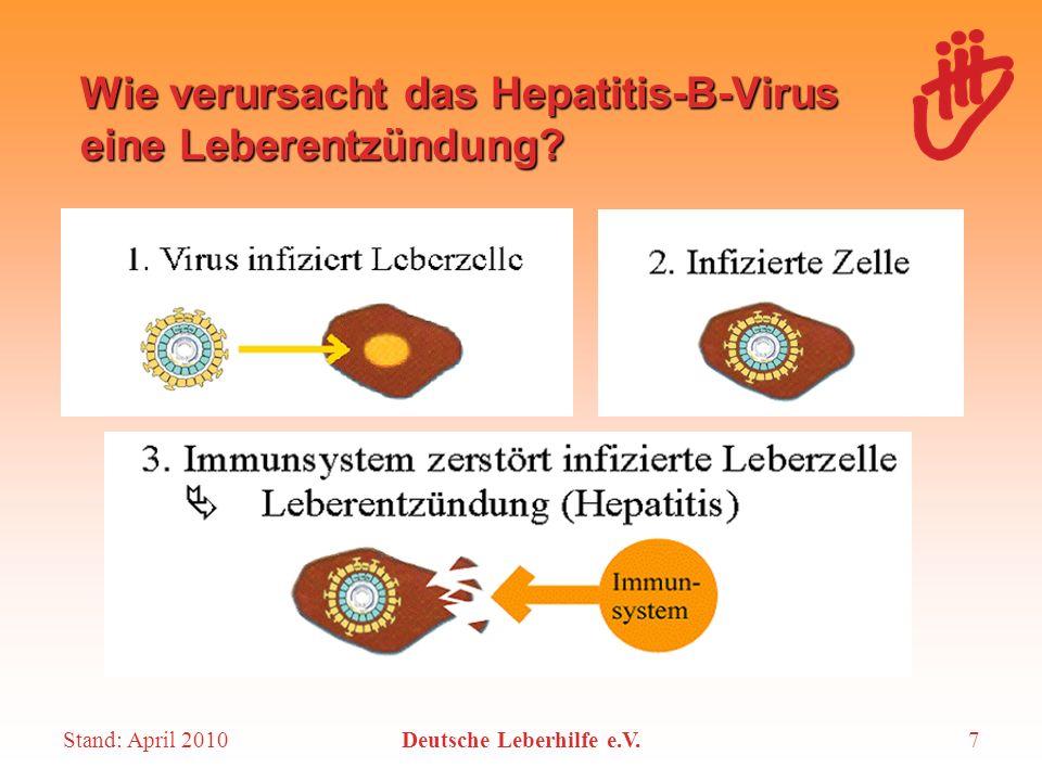 Stand: April 2010Deutsche Leberhilfe e.V.7 Wie verursacht das Hepatitis-B-Virus eine Leberentzündung?