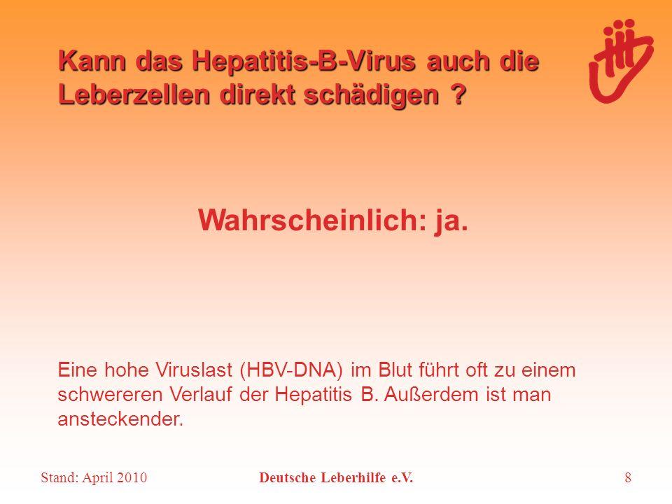 Stand: April 2010Deutsche Leberhilfe e.V.8 Kann das Hepatitis-B-Virus auch die Leberzellen direkt schädigen ? Wahrscheinlich: ja. Eine hohe Viruslast