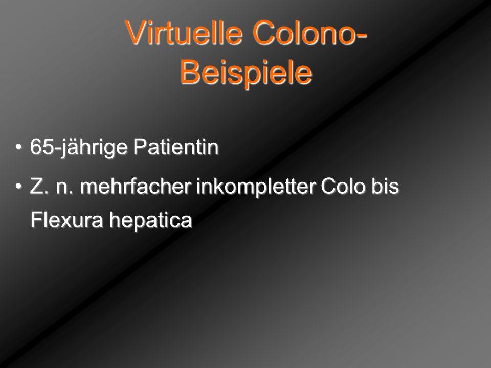 Virtuelle Colono- Beispiele 65-jährige Patientin65-jährige Patientin Z. n. mehrfacher inkompletter Colo bis Flexura hepaticaZ. n. mehrfacher inkomplet