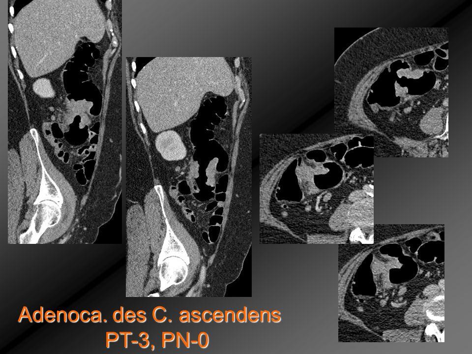 Adenoca. des C. ascendens PT-3, PN-0 PT-3, PN-0