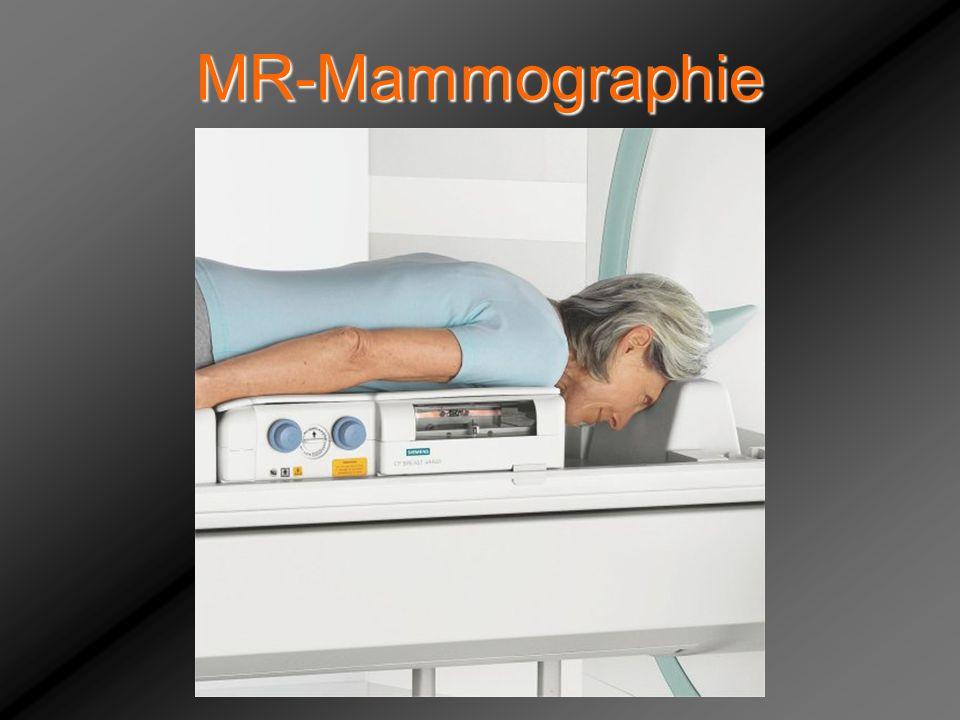 MR-Mammographie