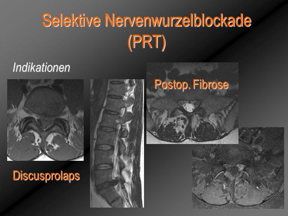 Selektive Nervenwurzelblockade (PRT) Discusprolaps Postop. Fibrose Indikationen