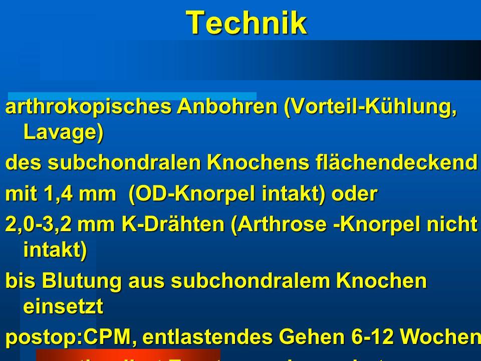 Technik arthrokopisches Anbohren (Vorteil-Kühlung, Lavage) des subchondralen Knochens flächendeckend mit 1,4 mm (OD-Knorpel intakt) oder 2,0-3,2 mm K-
