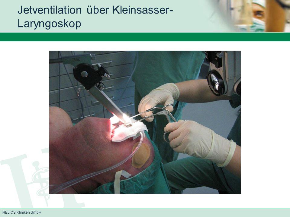 HELIOS Kliniken GmbH Jetventilation über Kleinsasser- Laryngoskop