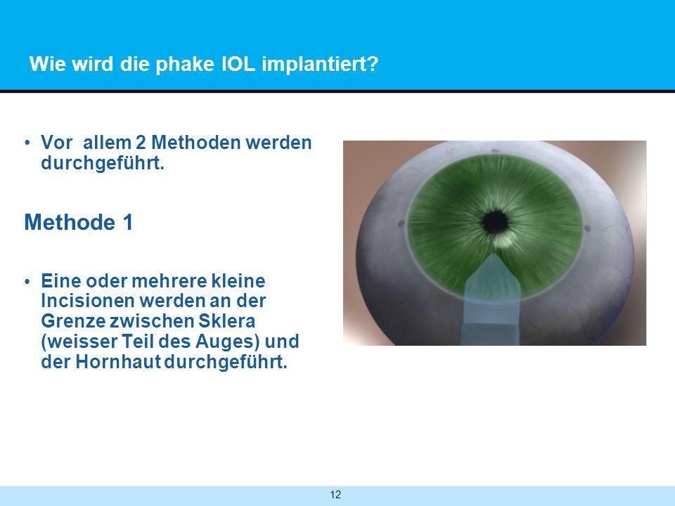 12 Wie wird die phake IOL implantiert.Vor allem 2 Methoden werden durchgeführt.
