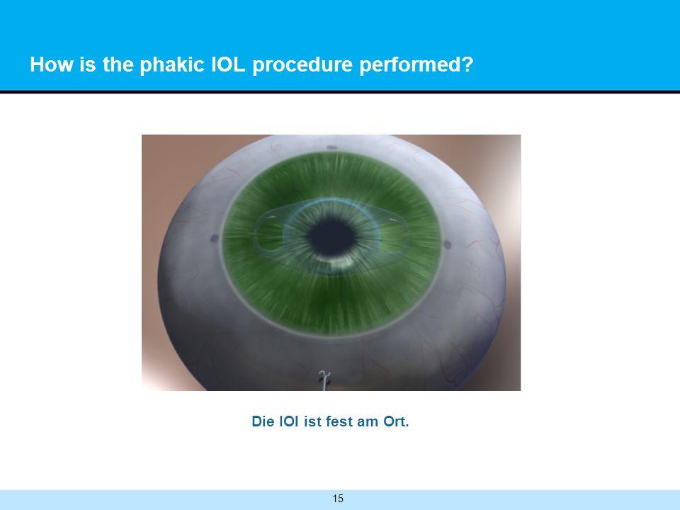 15 How is the phakic IOL procedure performed? Die IOl ist fest am Ort.