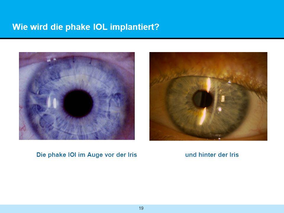 19 Wie wird die phake IOL implantiert? Die phake IOl im Auge vor der Iris und hinter der Iris