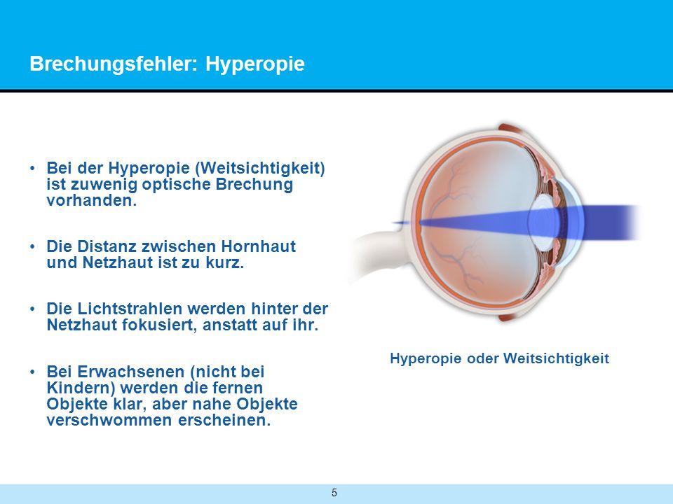 5 Brechungsfehler: Hyperopie Bei der Hyperopie (Weitsichtigkeit) ist zuwenig optische Brechung vorhanden.