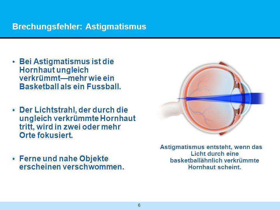 6 Brechungsfehler: Astigmatismus Bei Astigmatismus ist die Hornhaut ungleich verkrümmtmehr wie ein Basketball als ein Fussball.