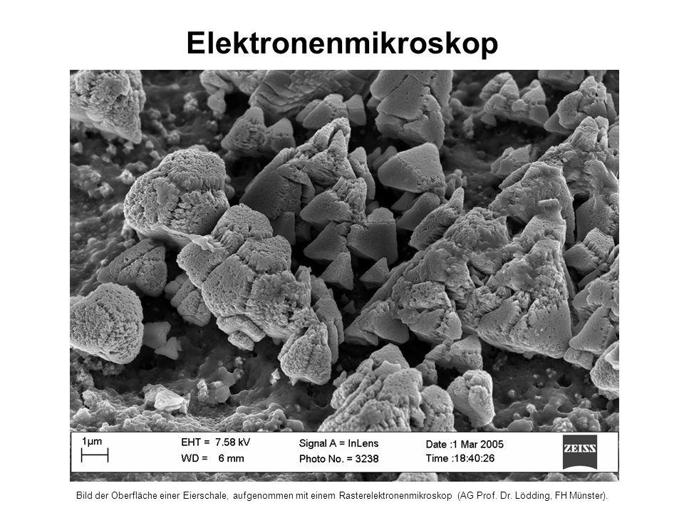 Bild der Oberfläche einer Eierschale, aufgenommen mit einem Rasterelektronenmikroskop (AG Prof.