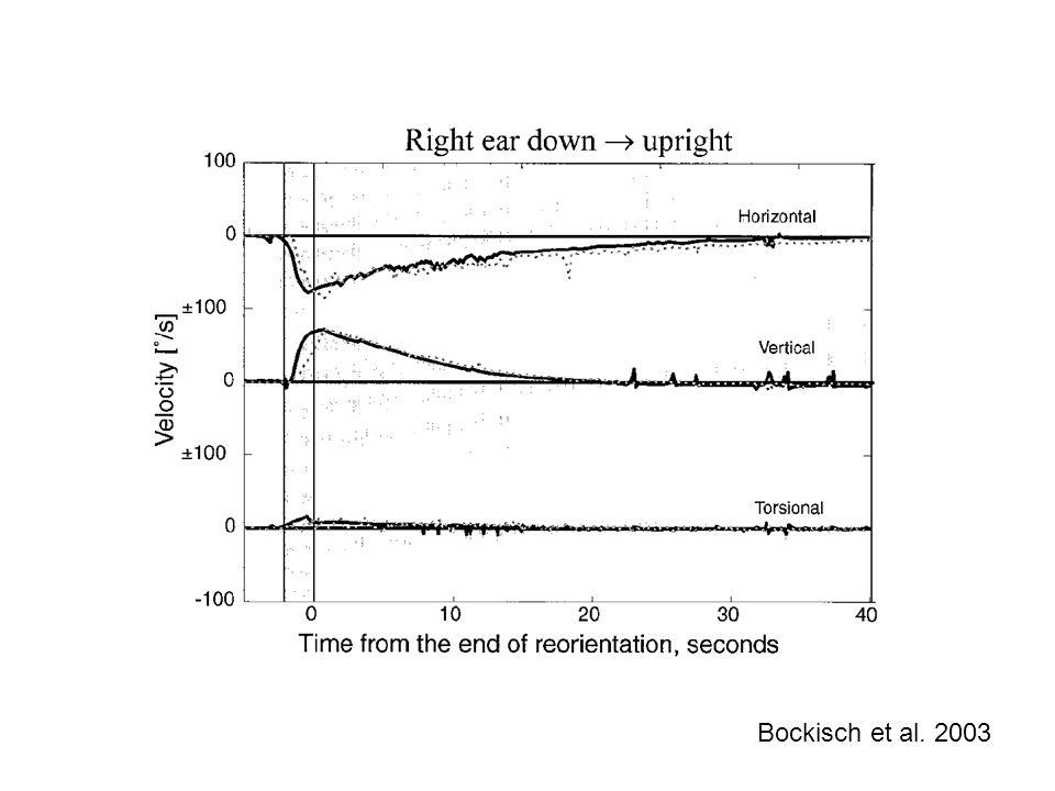 h = 200 º/s linear non-linear linear non-linear 150 20 0 90 170 90 80 norm: 140 Head impulse to the right h = 200 º/s linear non-linear linear non-linear 150 * 1.1 20 * 2 0 80 205 80 125 norm: 140 Head impulse to the right