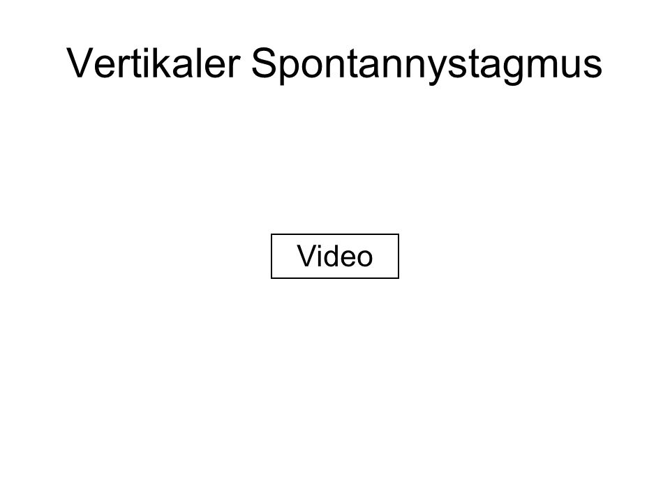 Vertikaler Spontannystagmus Video