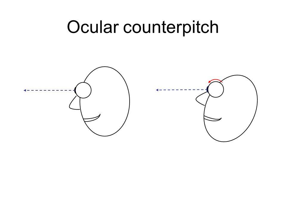 Ocular counterpitch