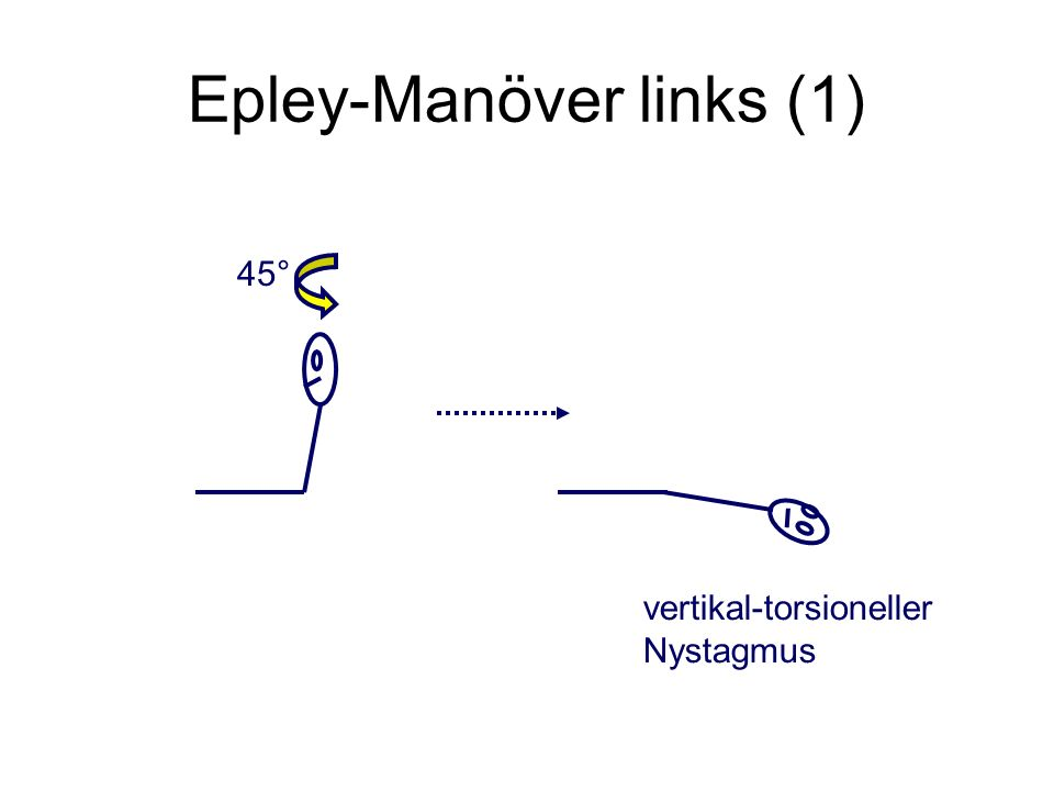 Epley-Manöver links (1) 45° vertikal-torsioneller Nystagmus