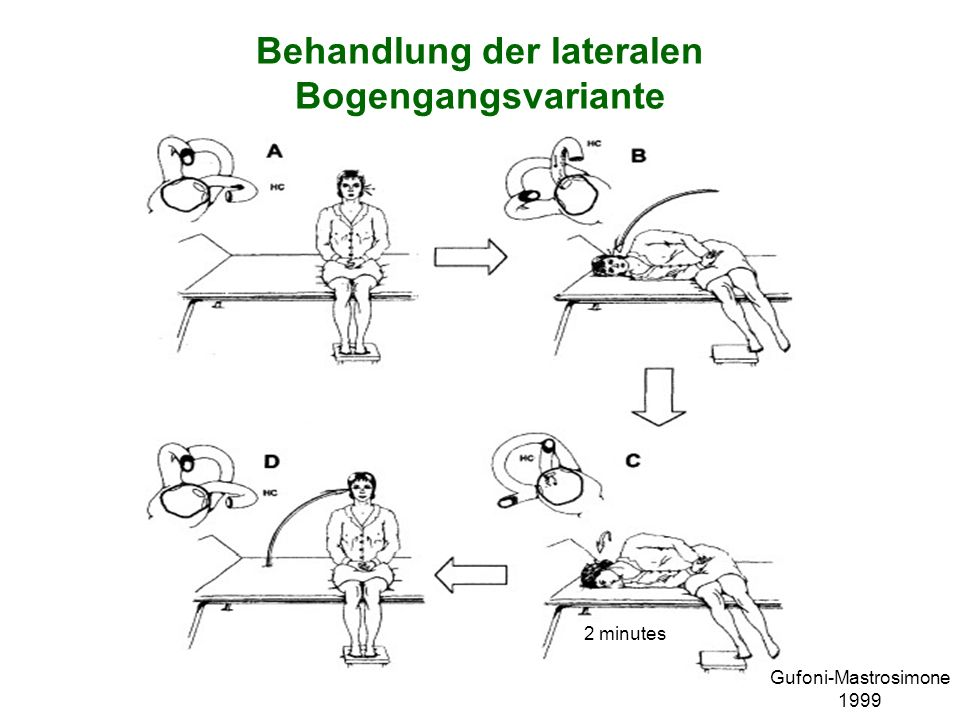 Behandlung der lateralen Bogengangsvariante Gufoni-Mastrosimone 1999 2 minutes