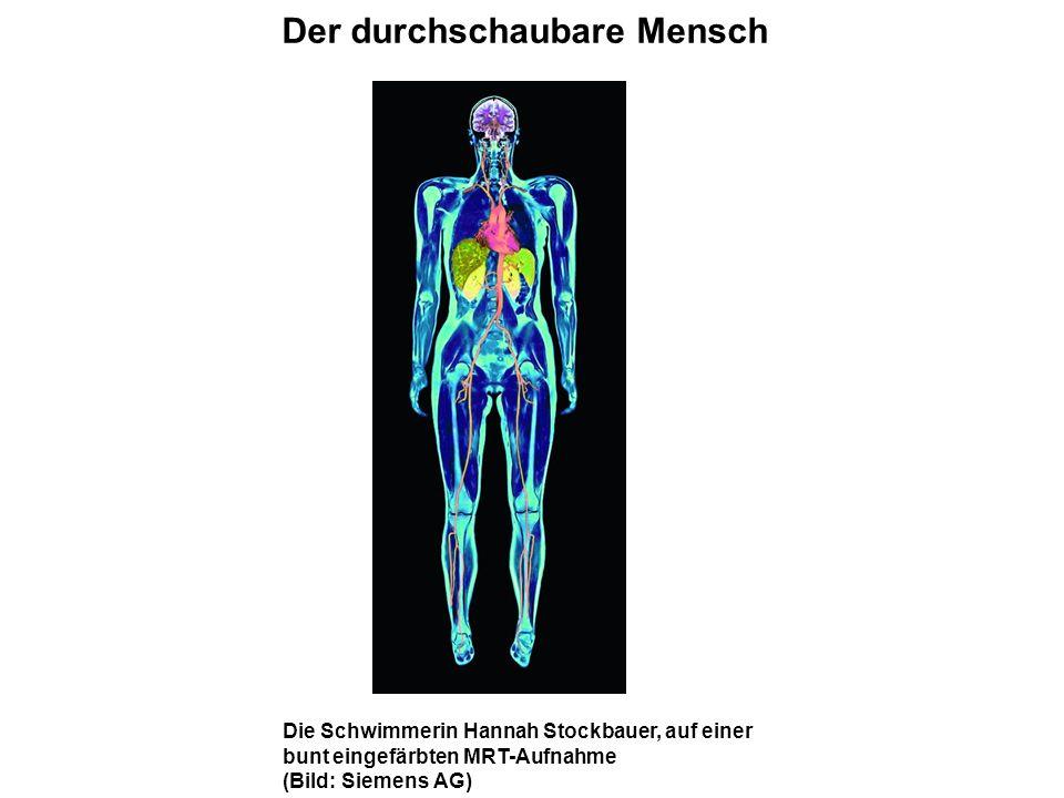 Die Schwimmerin Hannah Stockbauer, auf einer bunt eingefärbten MRT-Aufnahme (Bild: Siemens AG) Der durchschaubare Mensch