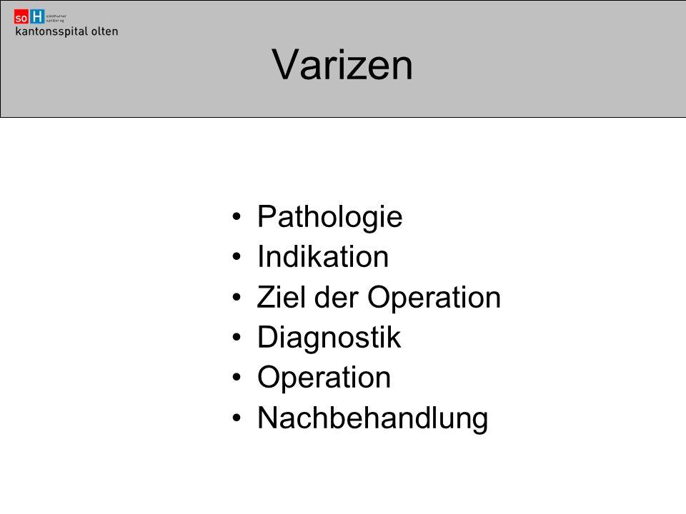Varizen Pathologie Indikation Ziel der Operation Diagnostik Operation Nachbehandlung