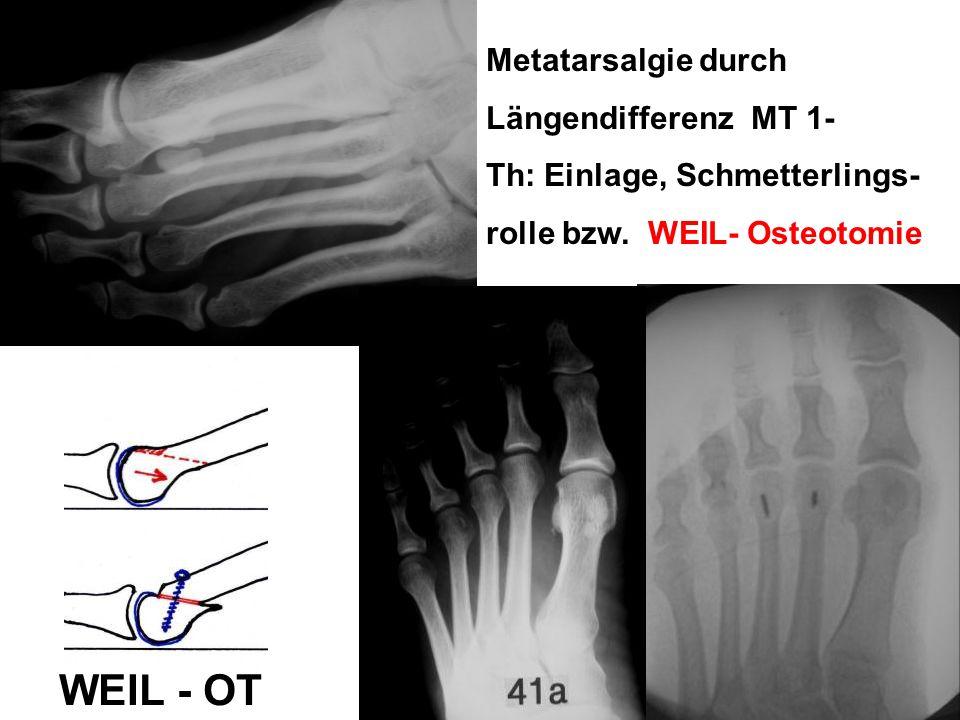 Metatarsalgie durch Längendifferenz MT 1- Th: Einlage, Schmetterlings- rolle bzw. WEIL- Osteotomie WEIL - OT