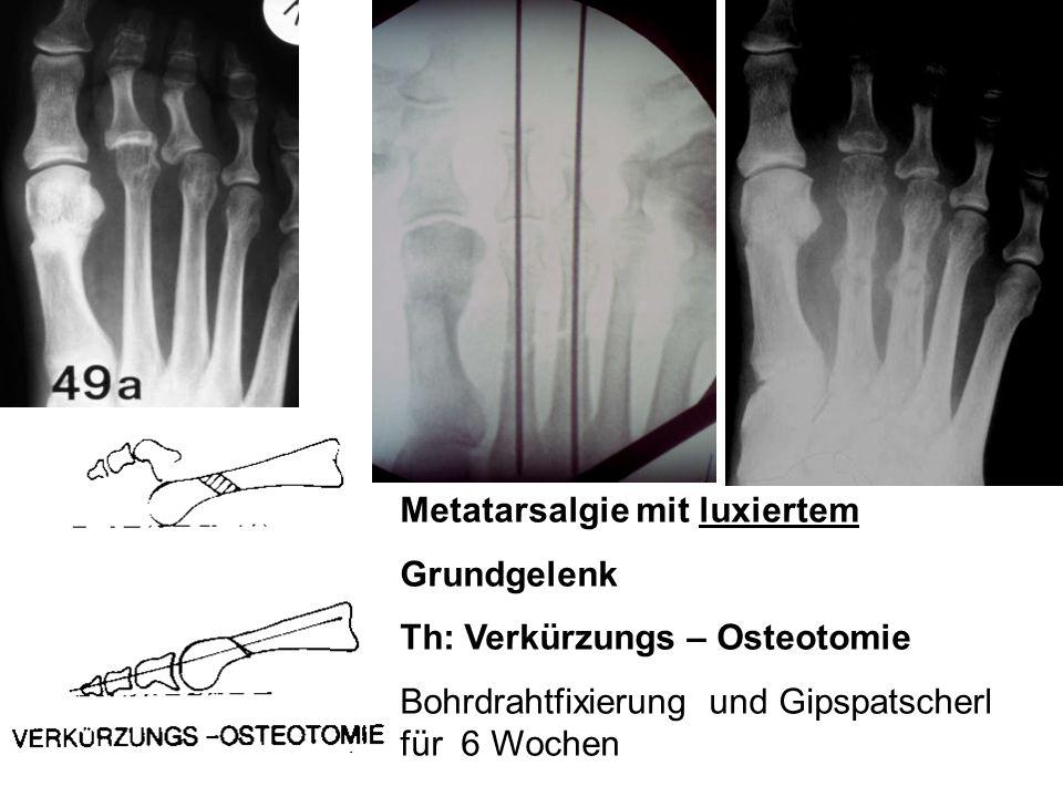 Metatarsalgie mit luxiertem Grundgelenk Th: Verkürzungs – Osteotomie Bohrdrahtfixierung und Gipspatscherl für 6 Wochen