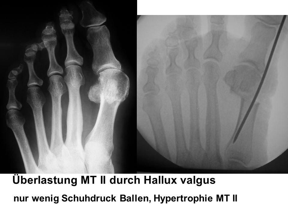 Überlastung MT II durch Hallux valgus nur wenig Schuhdruck Ballen, Hypertrophie MT II