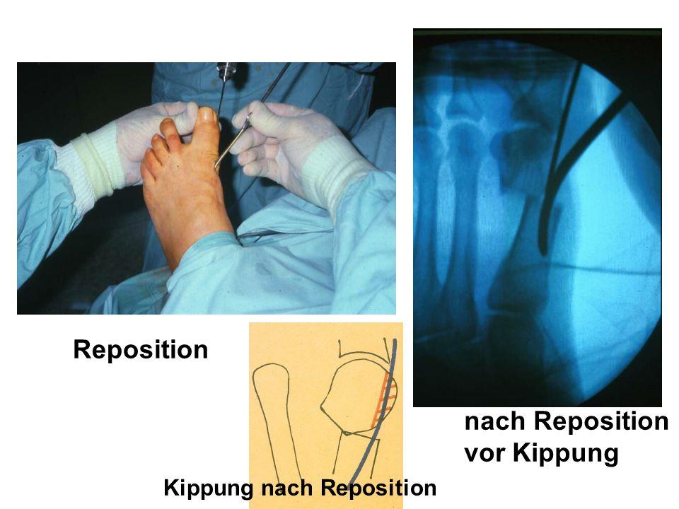 Reposition Kippung nach Reposition nach Reposition vor Kippung