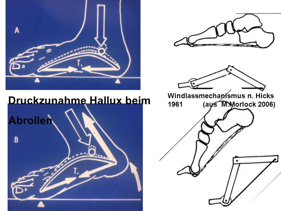 Windlassmechanismus n. Hicks 1961 (aus M.Morlock 2006) Druckzunahme Hallux beim Abrollen