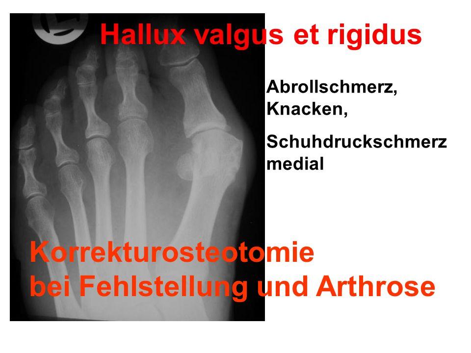 Hallux valgus et rigidus Abrollschmerz, Knacken, Schuhdruckschmerz medial Korrekturosteotomie bei Fehlstellung und Arthrose