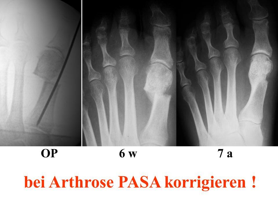 OP 6 w 7 a bei Arthrose PASA korrigieren !