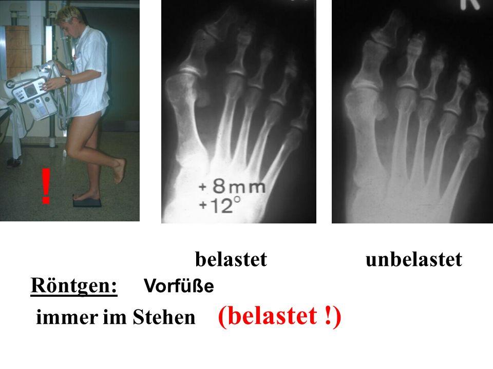 belastet unbelastet Röntgen: Vorfüße immer im Stehen (belastet !) !
