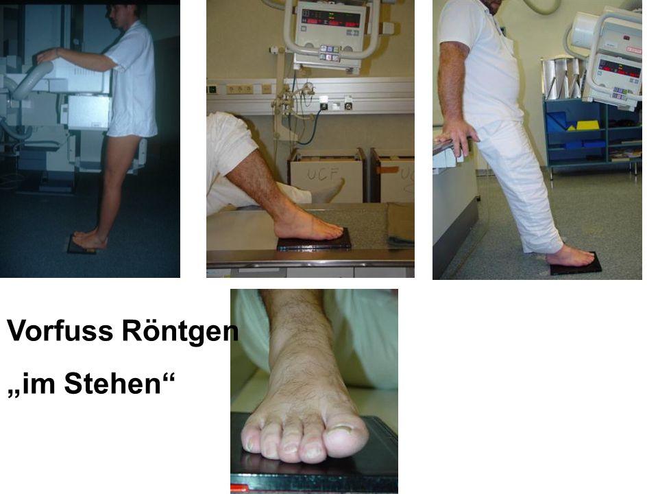 Vorfuss Röntgen im Stehen